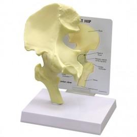 Basic Hip Model