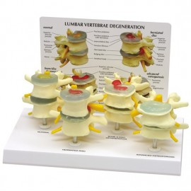 4-Stages of Osteoporosis Vertebrae Set Model