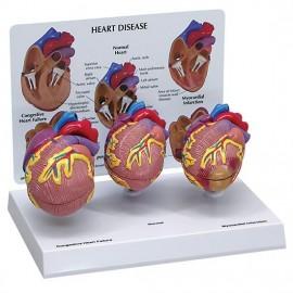 Mini Heart Set Models