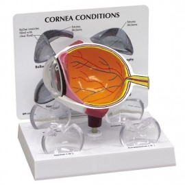Eye Cross Section Model (oversize) + Cornea set: Normal + 3 Conditions