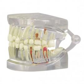 Clear Teeth Model - 2 Sided - Normal, Diseased, Implants