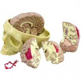 Diseased Brain in Skull