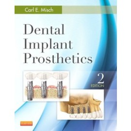 Dental Implant Prosthetics, 2e