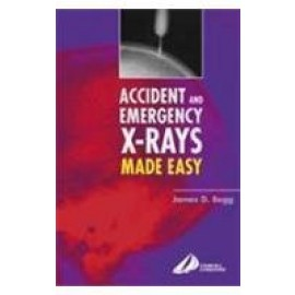 Accident & Emergency X-Rays Made Easy
