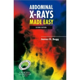 Abdominal X-Rays Made Easy, International Edition, 2nd Edition