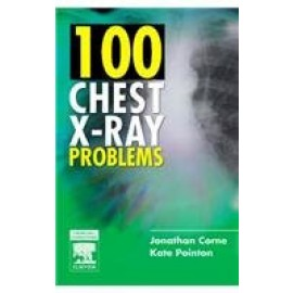 100 Chest X-Ray Problems IE