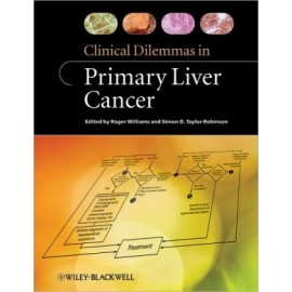 Clinical Dilemmas in Liver Cancer