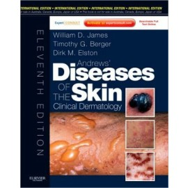 Andrews' Diseases of the Skin, IE, 11e **