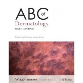 ABC of Dermatology, 6e