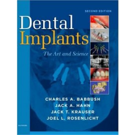 Dental Implants, 2e **