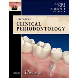 Carranza's Clinical Periodontology, 11e **