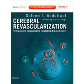Cerebral Revascularization