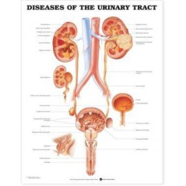 Diseases of the Urinary Tract Chart