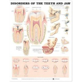 Disorders of the Teeth and Jaw Chart
