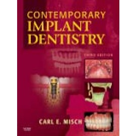 Contemporary Implant Dentistry, 3/e