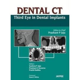 Dental CT: Third Eye in Dental Implants