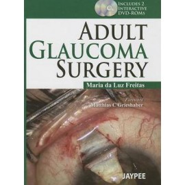 Adult Glaucoma Surgery