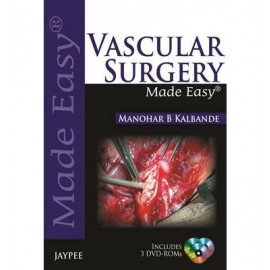 Vascular Surgery Made Easy