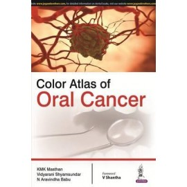 Color Atlas of Oral Cancer
