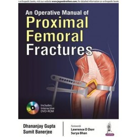 An Operative Manual of Proximal Fractures