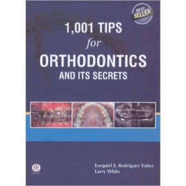 1001 Tips for Orthodontics and Its Secrets