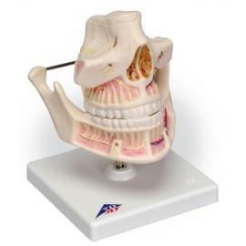 Adult Dentures